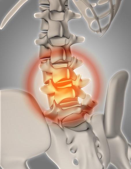 Wyraźnie dostrzegalny problem w odcniku lędźwiowym kręgosłupa. Fizjoterapeuta dziecięcy katowice musi zdiagnozować strukturę mogącą stanowić pierwotne źródło dolegliwości pacjenta w tym przypadku dziecka.